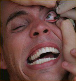 Le psoriasis de la poitrine de la photo
